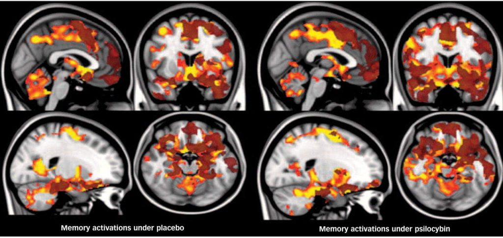 "Brain scans show why psychedelics might be beneficial. These images appear in ""Implications for psychedelic-assisted psychotherapy: functional magnetic resonance imaging study with psilocybin,"" a 2012 study in the British Journal of Psychiatry. Early phase activations are shown in orange and late phase activations in translucent dark red. The left hemisphere is shown on the right. (Courtesy of Royal College of Psychiatrists)"